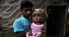 Baby Roona Begum undergoes surgery for hydrocephalus – will she able to lead a normal life?